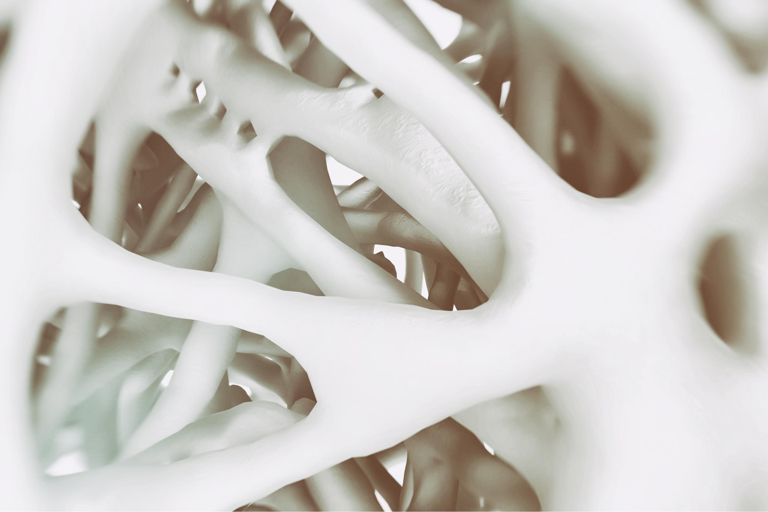 Bone health osteoporosis