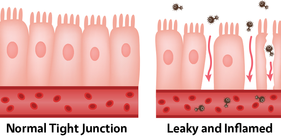 junctions permeable gut lining